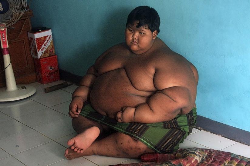 Mirá el enorme cambio que tuvo el niño más obeso del mundo