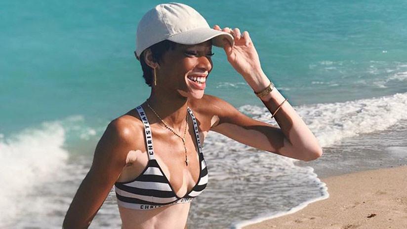 """""""Soy bella porque lo sé"""": El inspirador ejemplo de la modelo con vitíligo que derribó los cánones"""