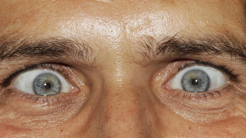 FOTO: Un gusano 'devorador' de cerebros crece en el ojo de un hombre