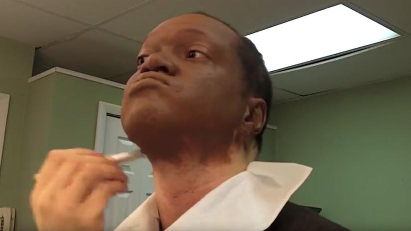 Este periodista ocultó una rara enfermedad de su piel por motivos laborales