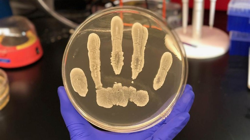La piel humana contiene una bacteria clave que podría combatir el cáncer