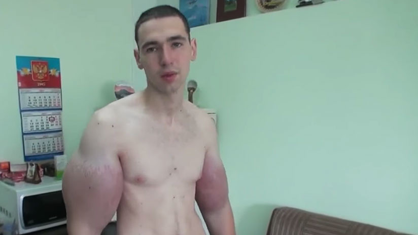 """""""Pido a Dios la muerte"""": El 'hulk' ruso dice que ya no aguanta el dolor en los brazos"""