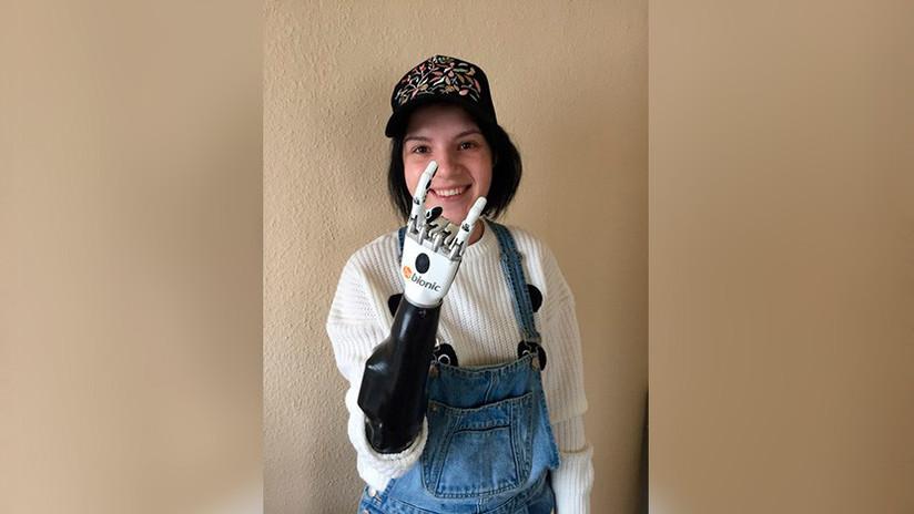 Una mujer rusa a quien su marido le cortó ambas manos con un hacha recibe una prótesis biónica