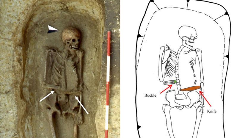 Sorpresa para antropólogos: Hallan en Italia un 'cíborg' medieval con un cuchillo en vez de mano