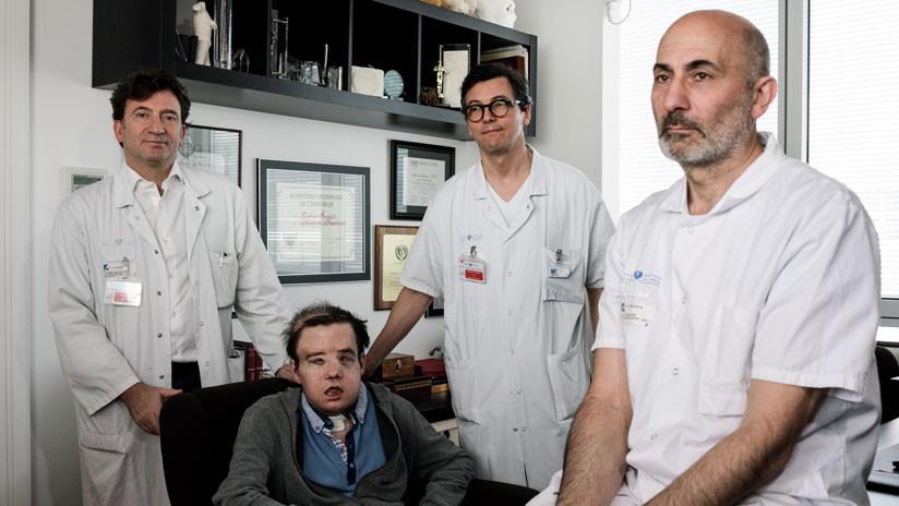 """""""El hombre de las tres caras"""" busca su """"identidad"""" tras una nueva cirugía (FOTOS)"""