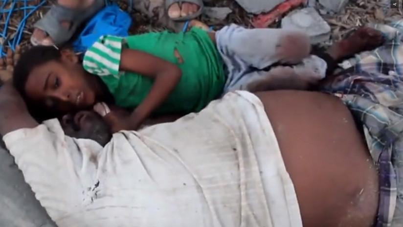Desgarradoras imágenes: Un niño yemení se aferra al cadáver de su padre tras un bombardeo