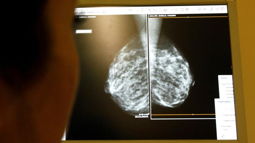 Error informático: 270 británicas habrían muerto de cáncer de mama y 450.000 no saben si lo sufren