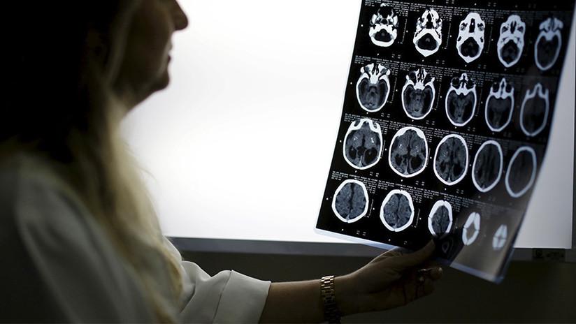 EE.UU.: Una mujer pierde líquido cerebral desde hace años por un diagnóstico erróneo