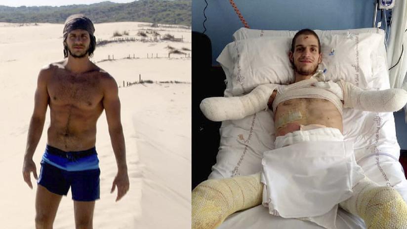 Amputan a un italiano los brazos y las piernas por un diagnóstico erróneo
