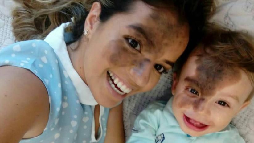 Se maquilla en la cara la mancha de su hijo para celebrar la singularidad del bebé