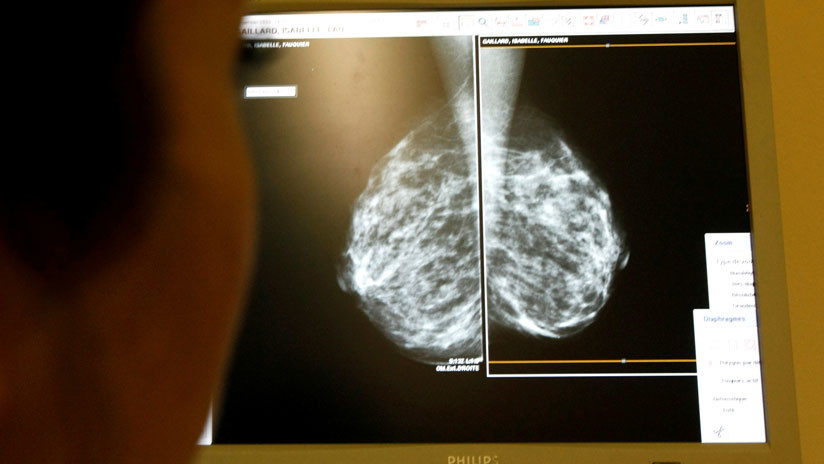 Hallan un método para impedir el cáncer de mama