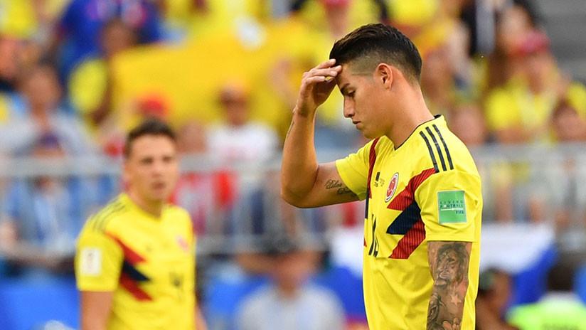 La Federación Colombiana de Fútbol confirma la lesión menor de James Rodríguez