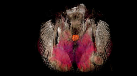 Imagen de la cabeza de una hormiga infectada por tres parásitos (marcadas en círculos) en su interior.