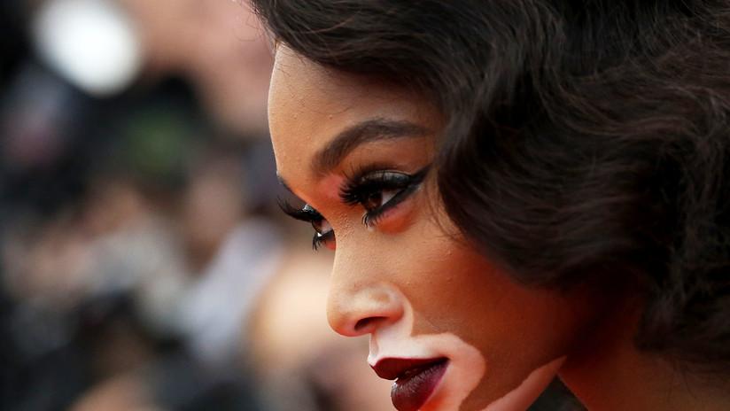 Es elegida para el Victoria's Secret Fashion modelo con vitiligo