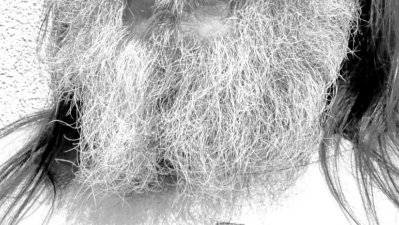 FOTO: La revista Vogue publica una imagen de una modelo con barba y en las redes estallan las bromas