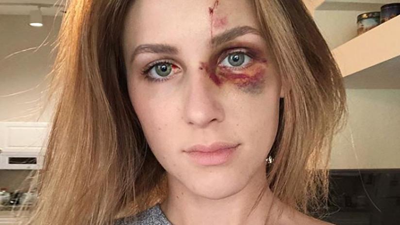 FOTOS: Así quedó el rostro de una joven brasileña golpeada por su novio millonario
