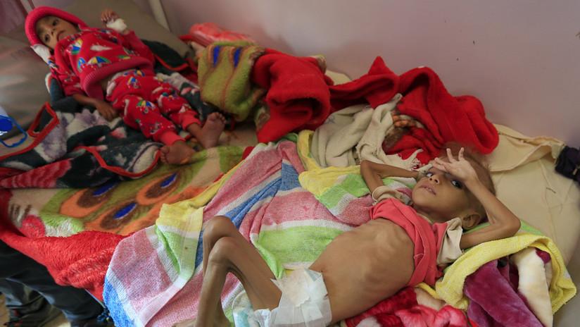 ONU: Más de la mitad de la población de Yemen está al borde de la inanición