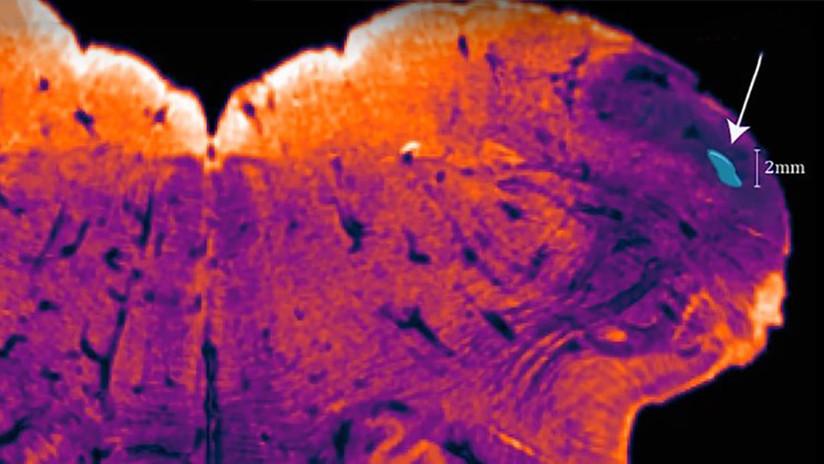 Descubren una región desconocida del cerebro humano