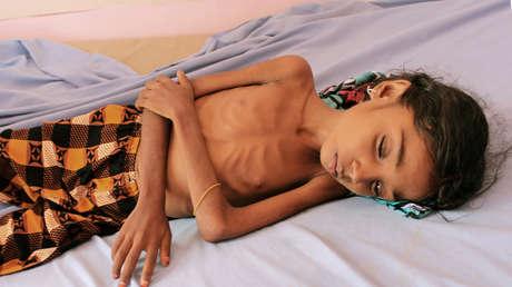 Una niña yemení en un hospital en la provincia de Hajjah, en el noroeste del país, 25 de octubre de 2018.