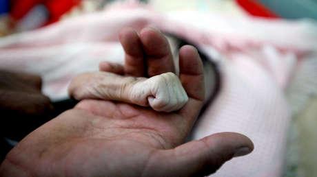 Un hombre muestra la mano de su hija de cuatro meses, fallecida de malnutrición en Saná, Yemen, 15 de noviembre de 2018.