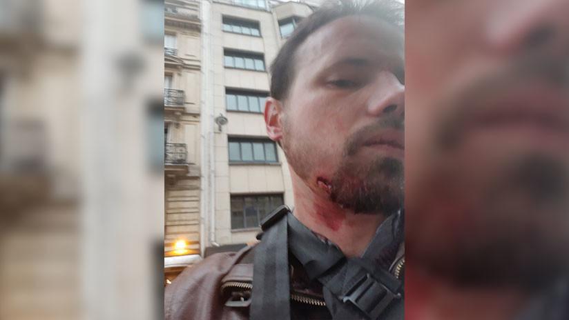 Dos periodistas de RT France resultan heridos durante la cobertura de las protestas en París