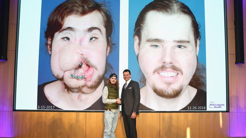 El trasplante facial más perfecto