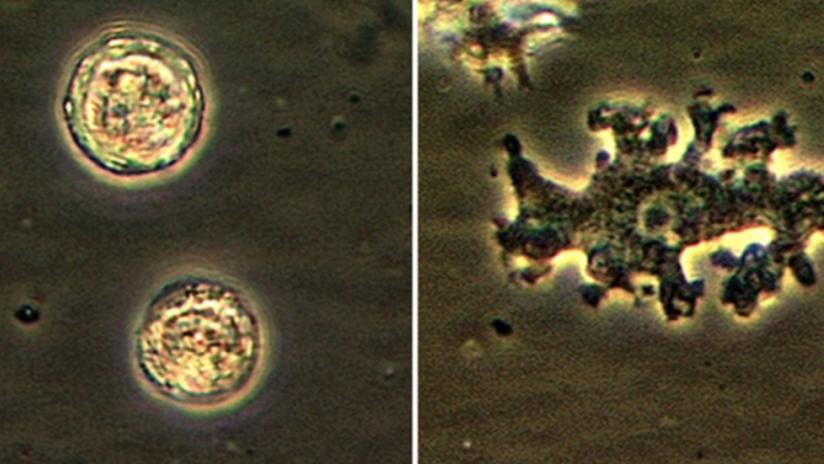 Una mujer muere por las amebas que le comieron el cerebro tras una irrigación nasal