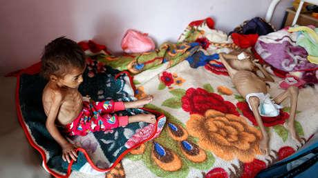 Niños desnutridos en un centro de tratamiento de malnutrición en el hospital Al Sabeen en Saná, Yemen, 6 de octubre de 2018.