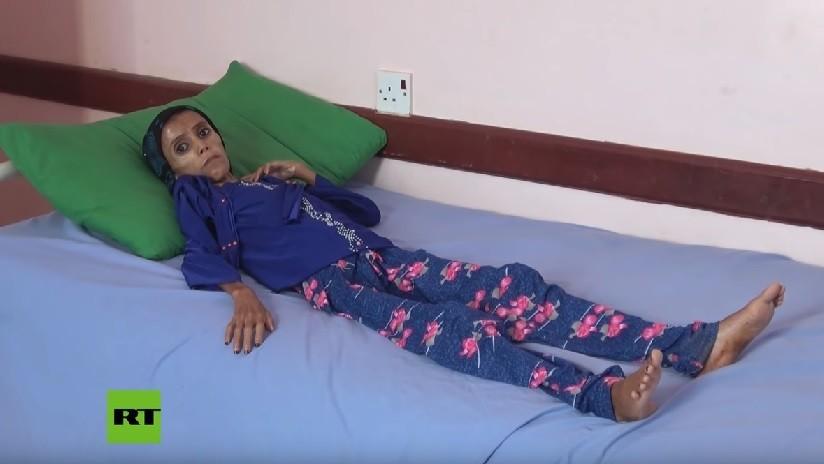 Una niña que pesa 10 kilogramos refleja el drama de la guerra en Yemen