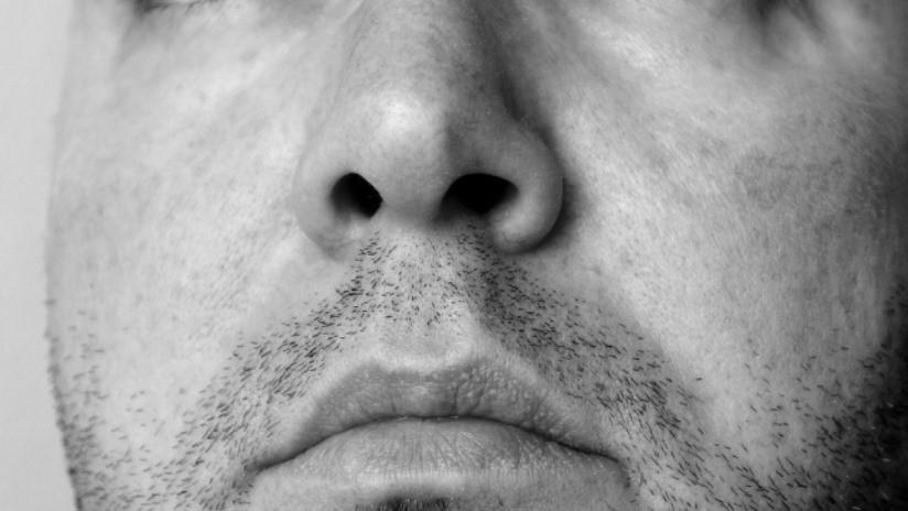 Se queja de problemas de olfato y le encuentran un diente creciendo en la nariz