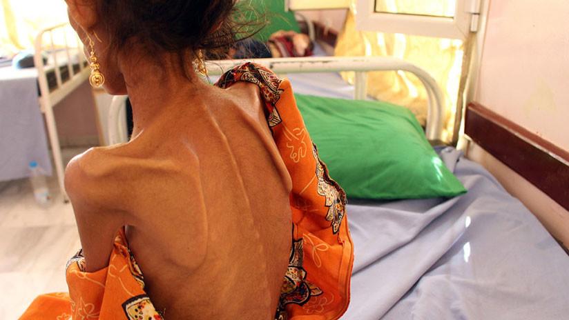 """Familias en Yemen casan a sus hijas menores a cambio de comida porque """"es la única manera"""" de sobrevivir"""