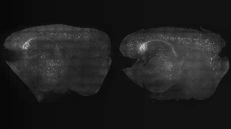 Comparación de cortezas cerebrales de dos ratones con y sin tratamiento a base de estimulación visual y auditiva respectivamente.