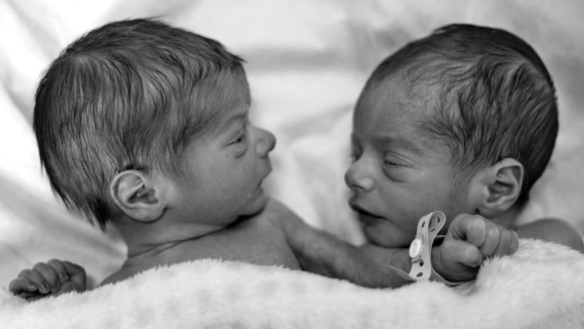 Récord: Dos gemelas alemanas nacen con 3 meses de diferencia y en años distintos