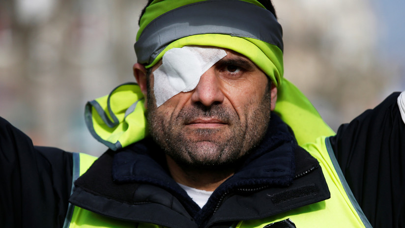 Los 'chalecos amarillos' que resultaron heridos graves crean una asociación para combatir la brutalidad policial