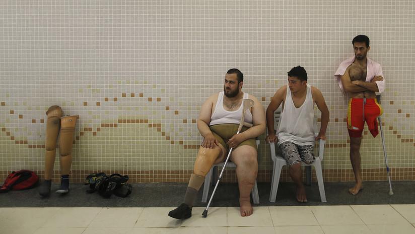 ONU: 1.700 palestinos heridos por las fuerzas israelíes podrían ser amputados por falta de fondos