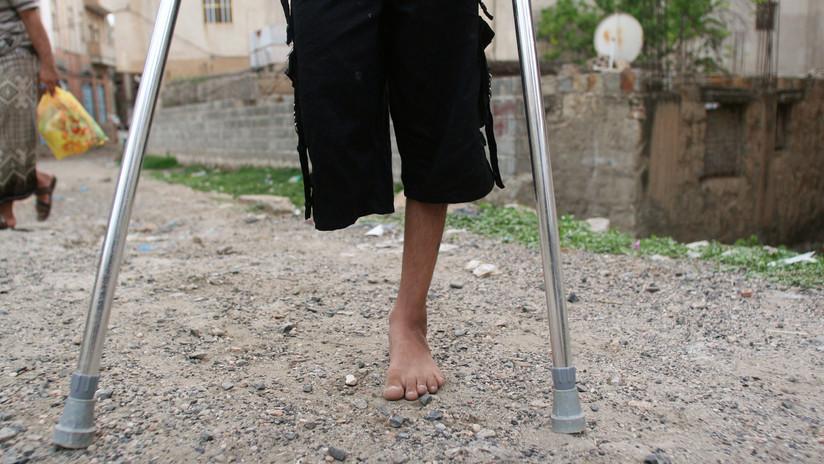 Un granjero se amputa una pierna con una navaja tras quedar atrapado en una máquina