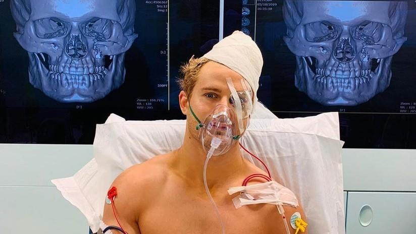 VIDEO, FOTO: Un brutal nocaut envía a un luchador de MMA directo al quirófano con ocho fracturas en el rostro