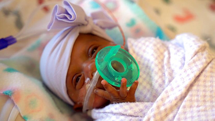FOTOS: La bebé más pequeña del mundo pesó 245 gramos al nacer
