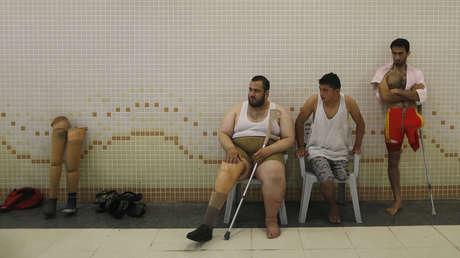 Pacientes palestinos en Gaza