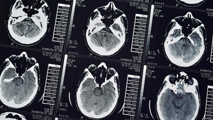 Descubre que una enorme tenia se alojó en su cerebro por un año y esa resultó ser la mejor noticia que podía esperar