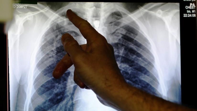 A una jubilada le colapsa un pulmón tras una acupuntura fallida