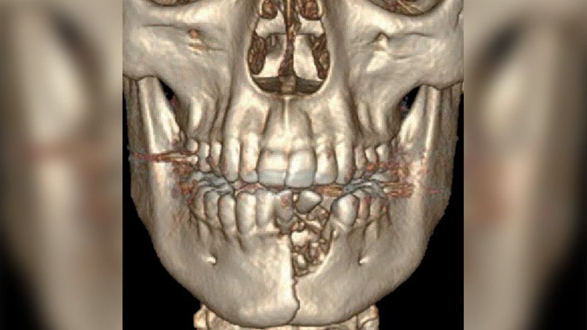 FOTO: Un joven de EE.UU. termina con la mandíbula fracturada al estallarle un cigarrillo electrónico en la boca