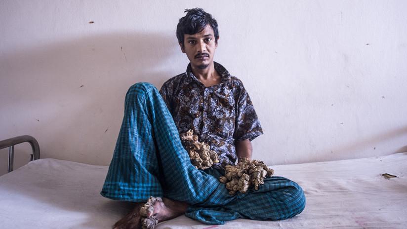 """""""No puedo soportar más el dolor"""": El 'hombre árbol' de Bangladés pide que le amputen las manos"""