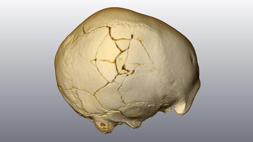 """FOTO: El análisis de un cráneo ayuda a resolver un """"asesinato de hace 30.000 años"""""""