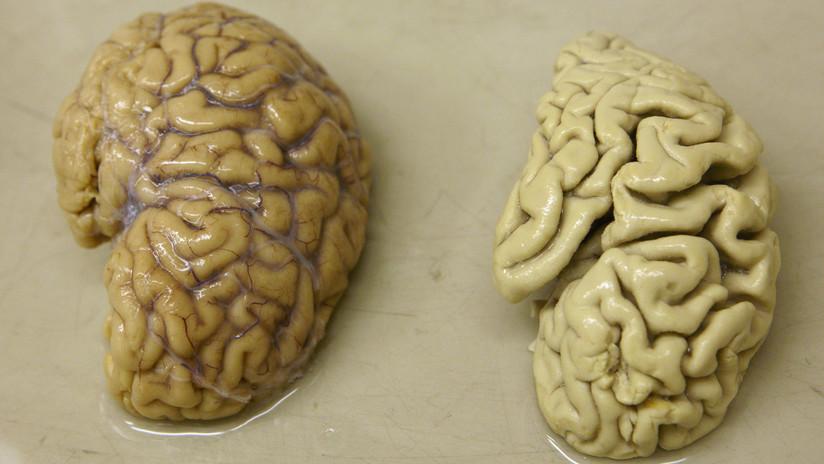 Un exsoldado ruso vive más de 60 años solo con la mitad de su cerebro (y no quiere que lo examinen)