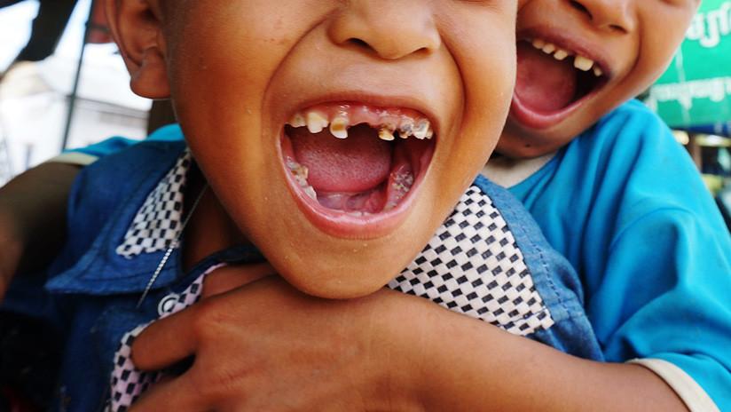Le extrajeron 526 dientes a un niño de siete años — Caso insólito