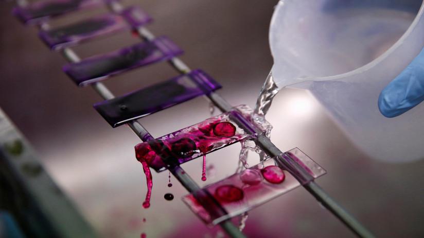 Nuevo análisis de sangre puede predecir quién morirá en los próximos 10 años, con una precisión de más del 80 %