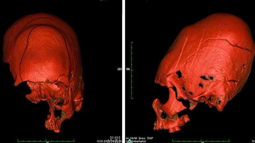 Explican el misterio de los cráneos alargados y oblicuos hallados en Croacia