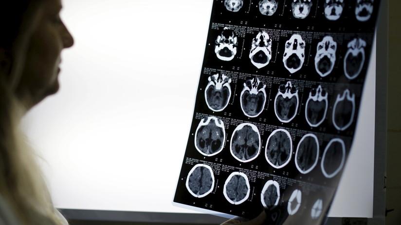 Una proteína del cerebro podría retrasar la progresión del alzhéimer