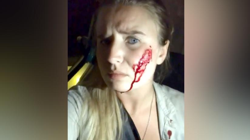 Una activista vegana libera 16 conejos y los granjeros disparan contra su auto (VIDEO)